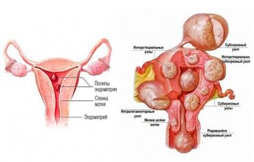 Субсерозная миома матки и беременность (отзывы)